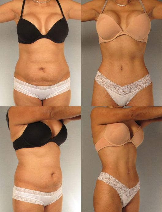87462-tummy-tuck-houston.JPG_tmp